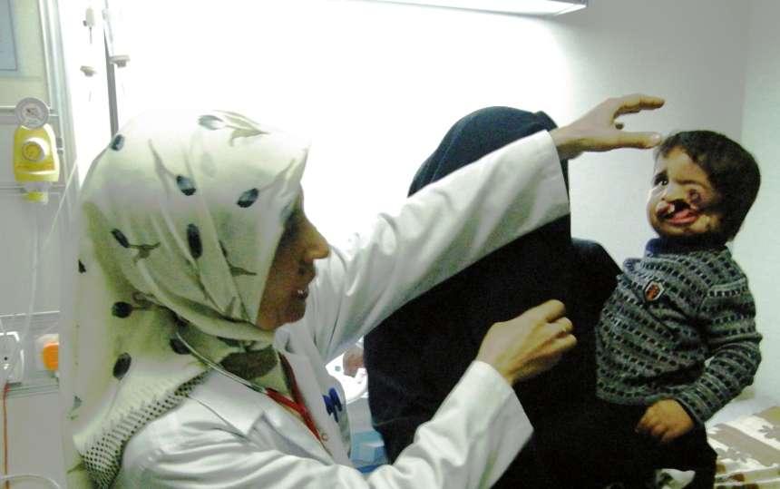 Irak Falloujah résultat sur les enfants des armes chimiques utilisées par l'arméee américaine